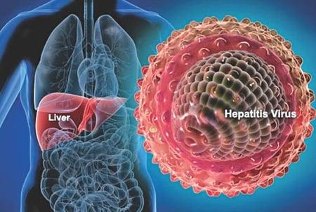 hepatitis-a.jpg